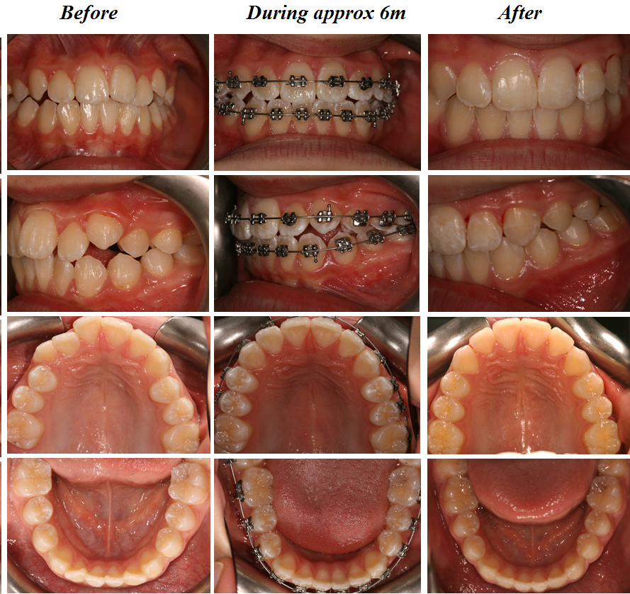 Aesthetic Dental Zone Ortho Before During and After