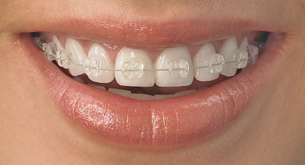 fixedbraces aesthetic dental zone