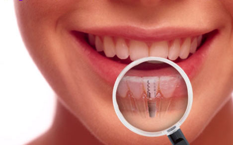 dental-implants-cost aesthetic dental zone