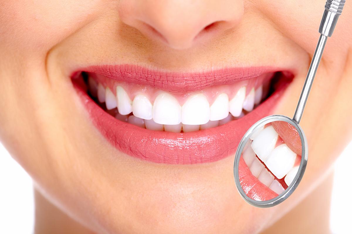 Home Whitening Aesthetic Dental Zone
