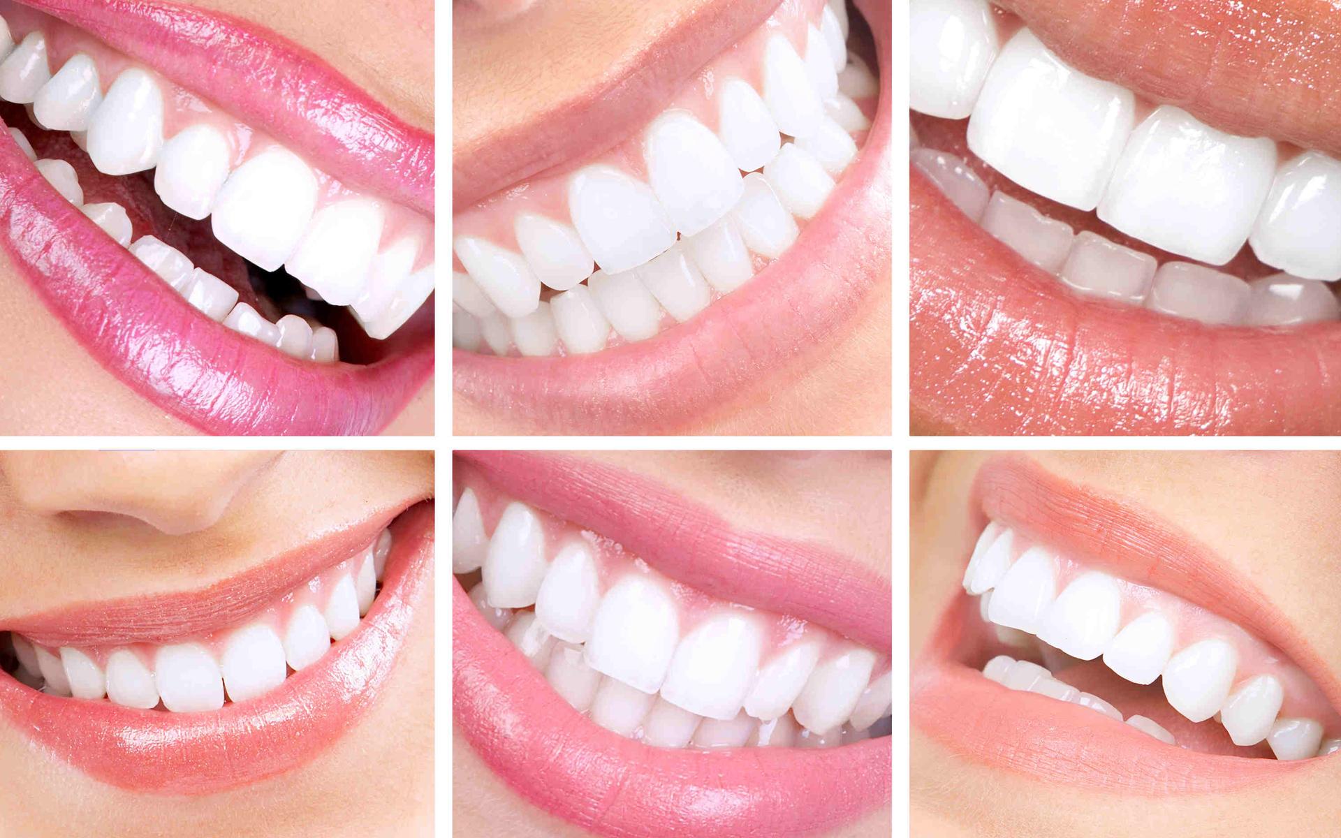 smiledesign  Aesthetic Dental Zone
