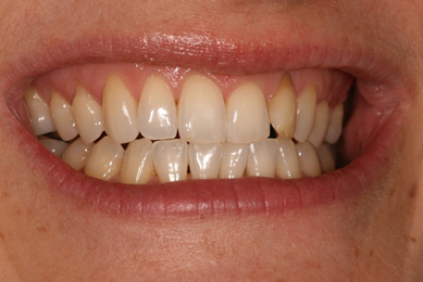 TOOTH WHITENING AFTER aesthetic dental zone