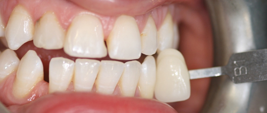 TOOTH WHITENING AFTER1 aesthetic dental zone