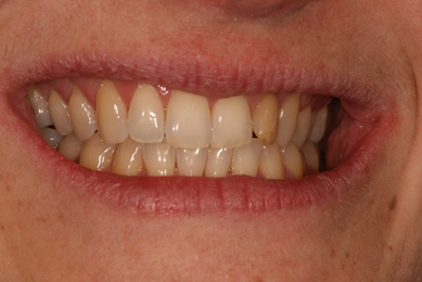 TOOTH WHITENING BEFORE Aesthetic Dental Zone