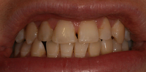 TOOTH WHITENING BEFORE1 Aesthetic Dental Zone
