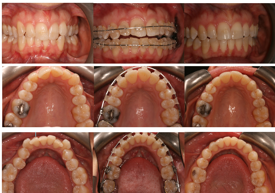 Aesthetic Dental Zone Before an After Ortho