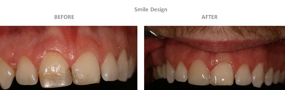 Aesthetic Dental Zone Smile Design