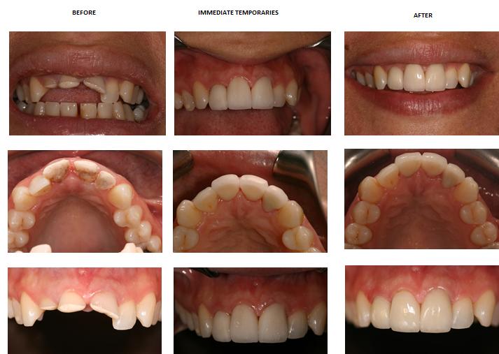 Aesthetic Dental Zone Smile