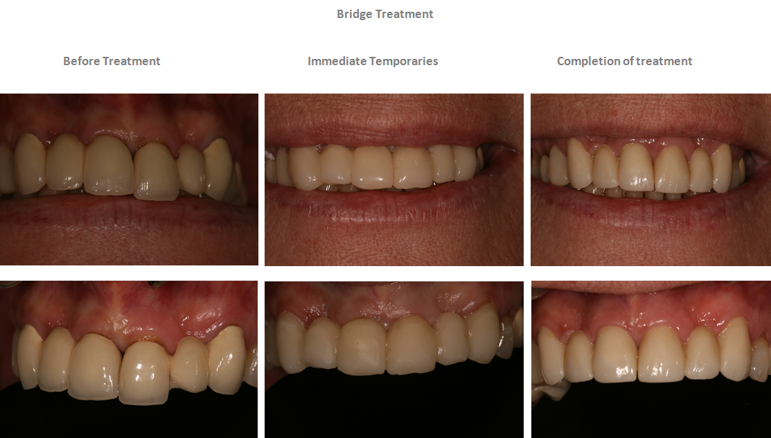 Aesthetic Dental Zone - Bridge Treatment