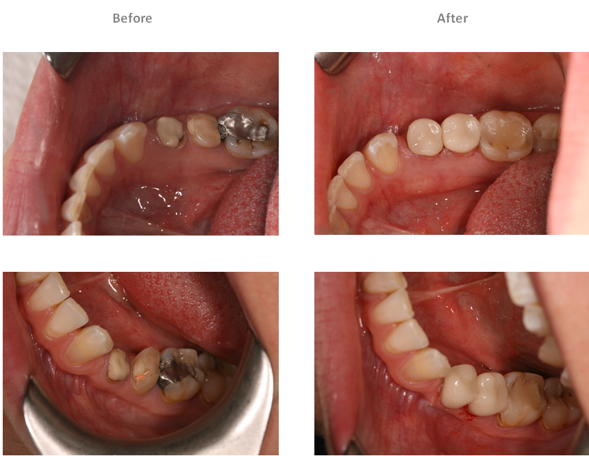 Aesthetic Dental Zone Cerec Bridges