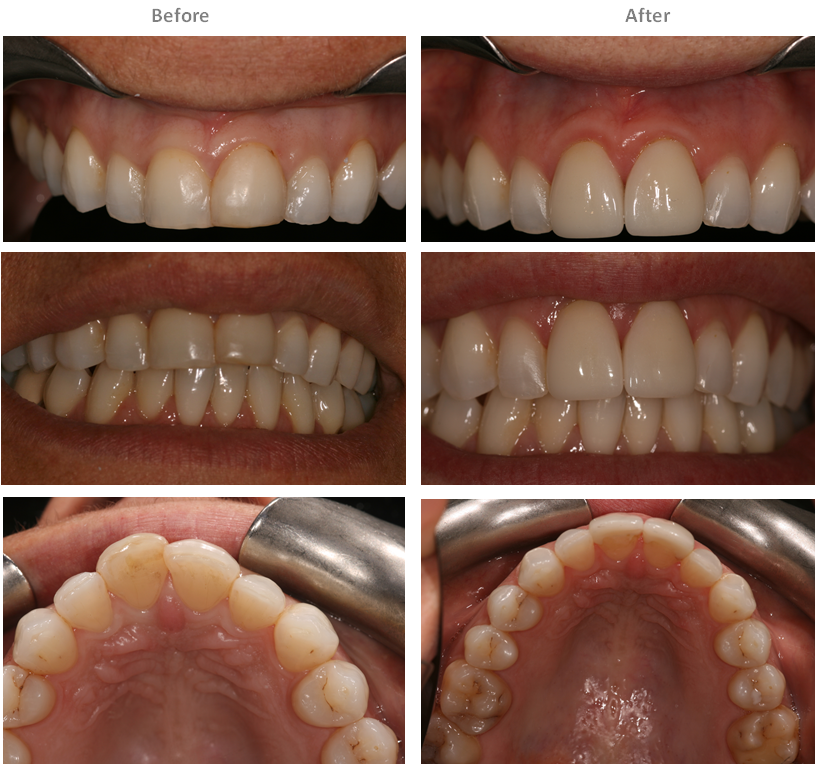Aesthetic Dental Zone Veneer