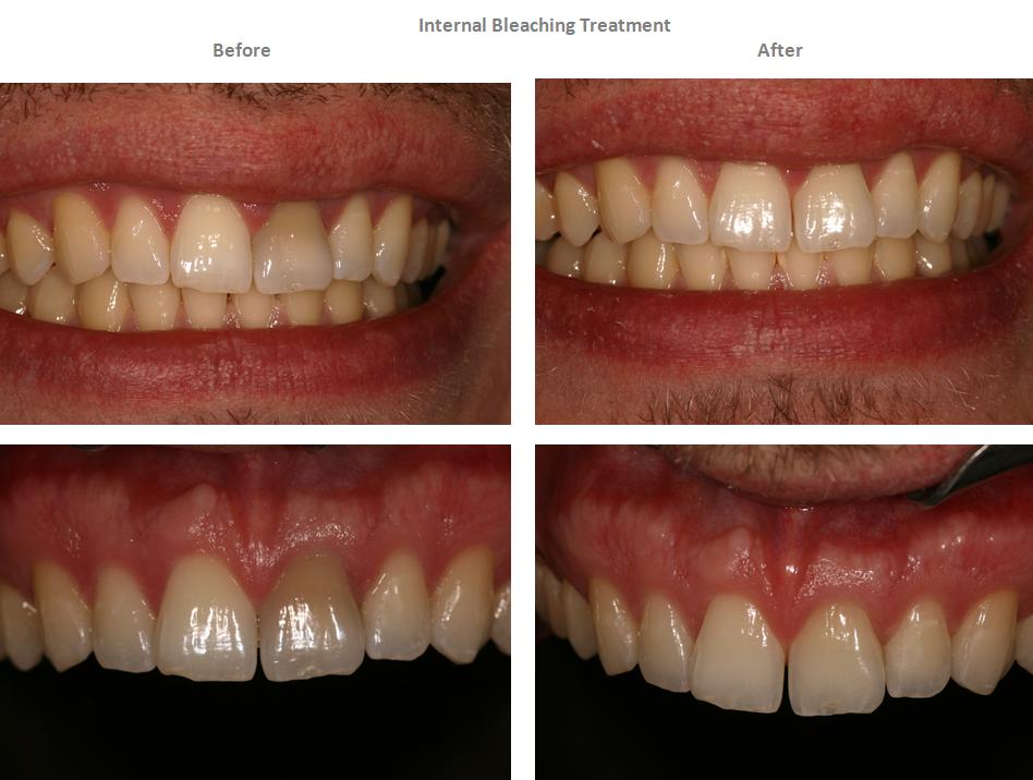 Aesthetic Dental Zone Internal Bleaching 2