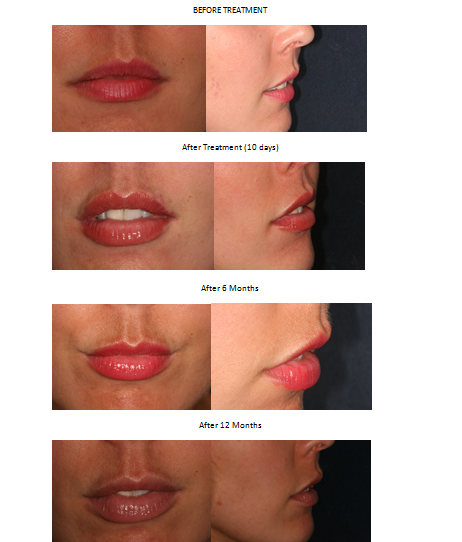 Lip filler Aesthetic Dental Zone