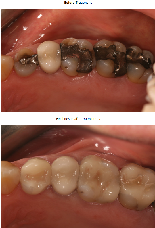 Aesthetic Dental Zone Crowns B&A