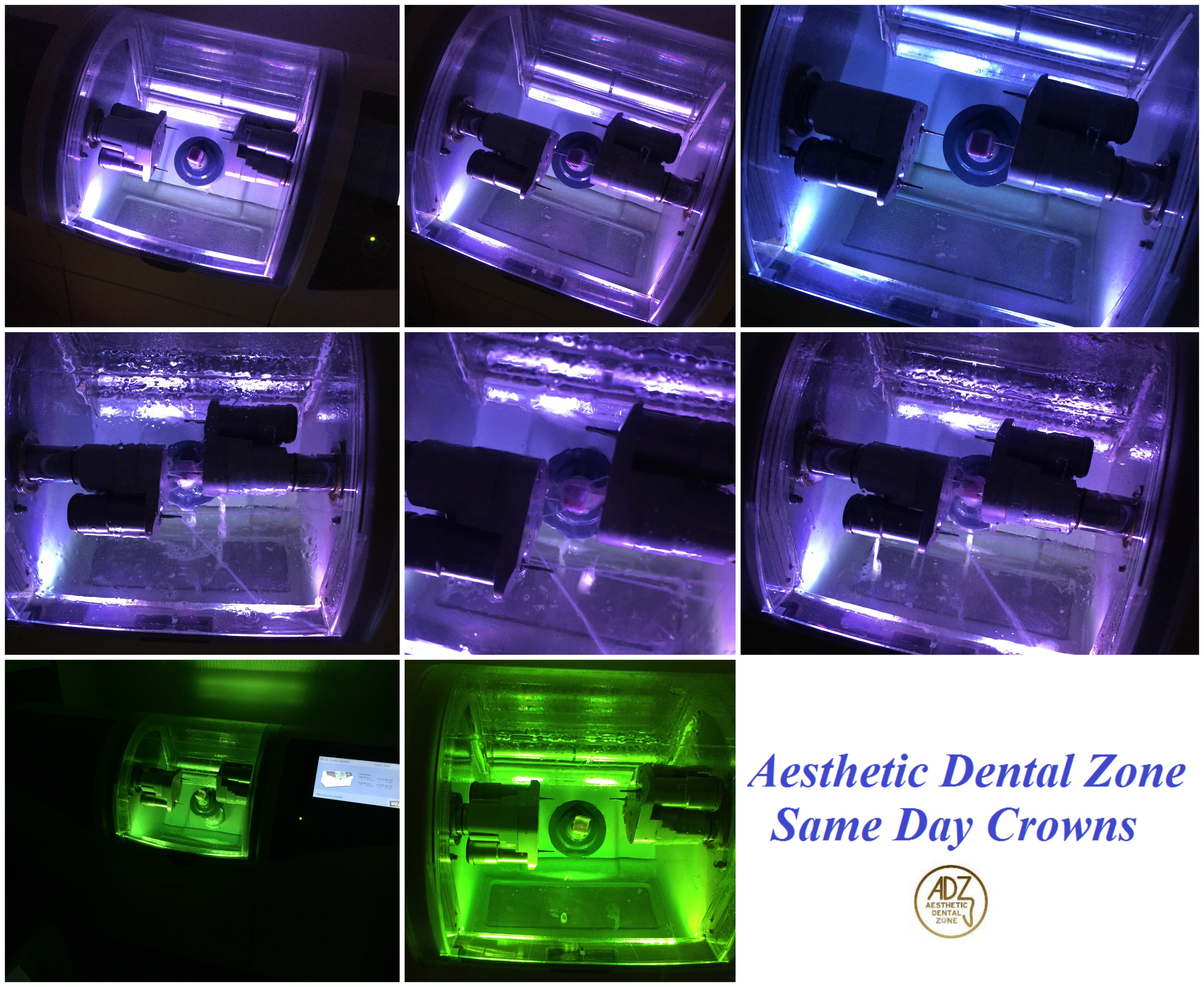 Aesthetic Dental Zone Same Day Crowns