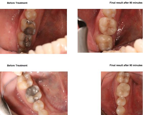 Aesthetic Dental Zone crown 3