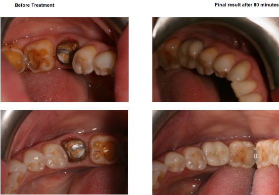 Aesthetic Dental Zone crowns 2