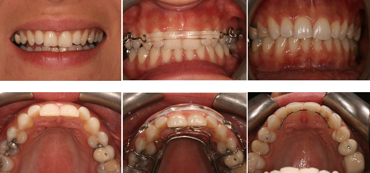 Aesthetic Dental Zone Inman Aligner