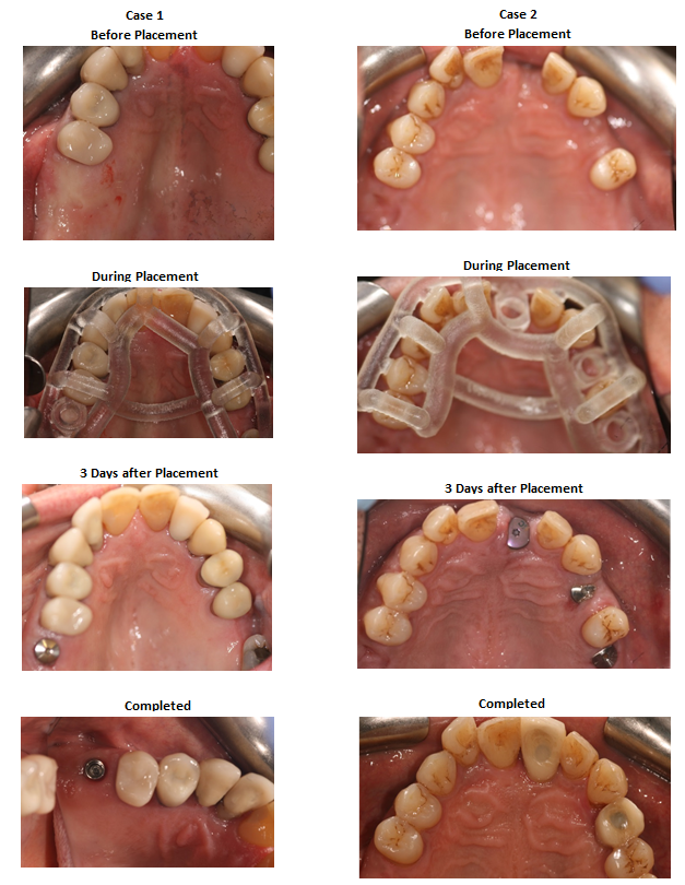 Aesthetic Dental Zone Gudied implant cases
