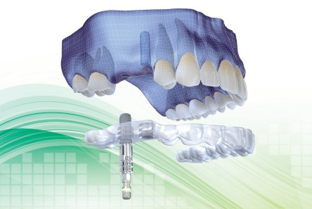 Aesthetic Dental Zone Guided Implants