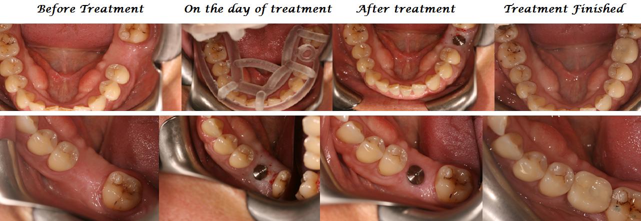 Aesthetic Dental Zone - Implant 1