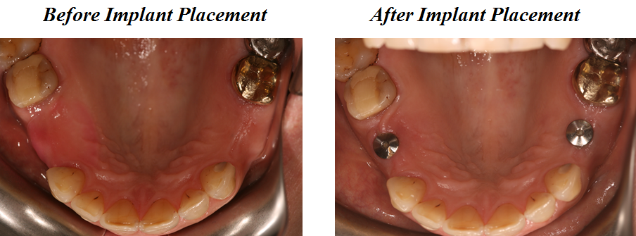 Aesthetic Dental Zone Implants Before and After