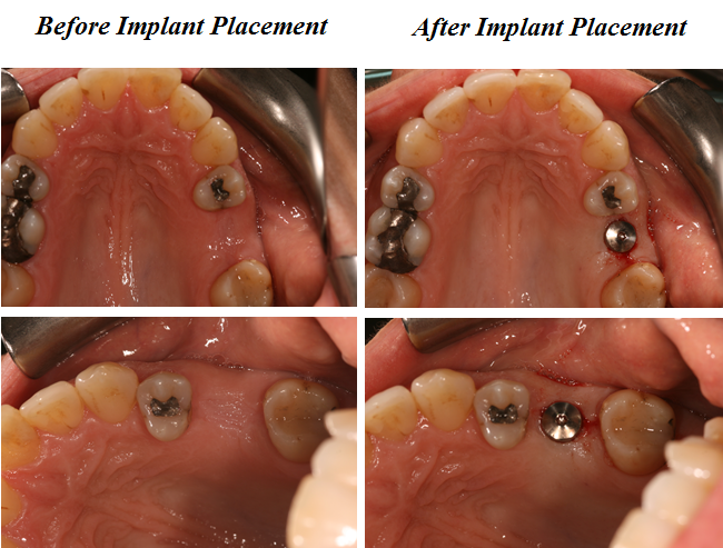 Guided Implant Treatment Aesthetic Dental Zone