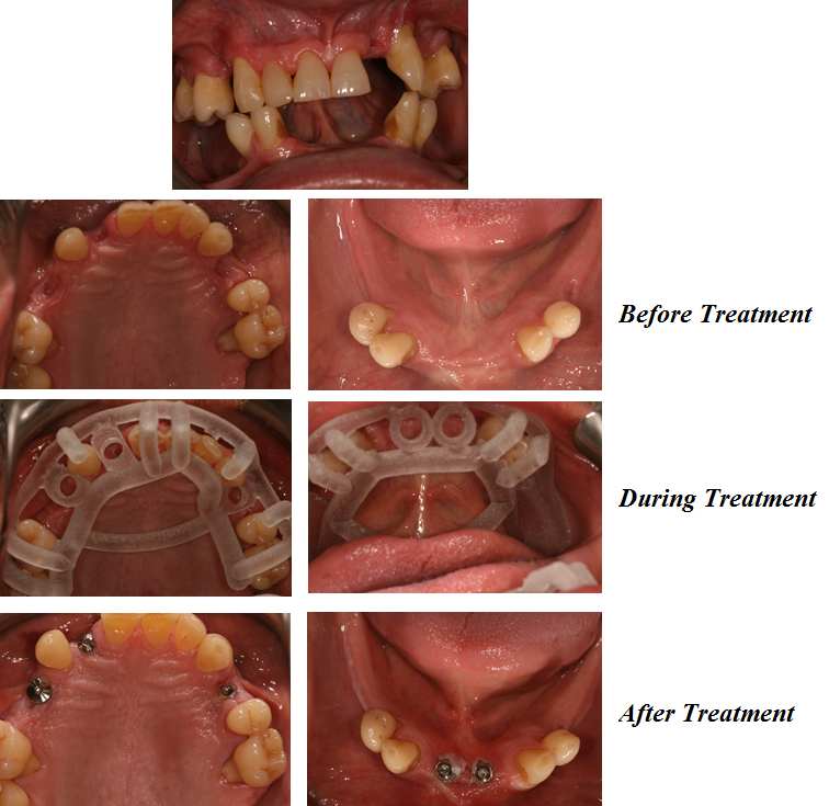 Implant Before and After