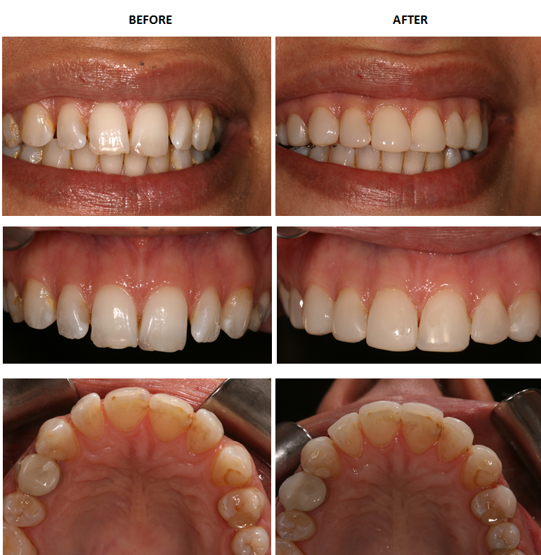 Aesthetic Dental Zone Smile Design