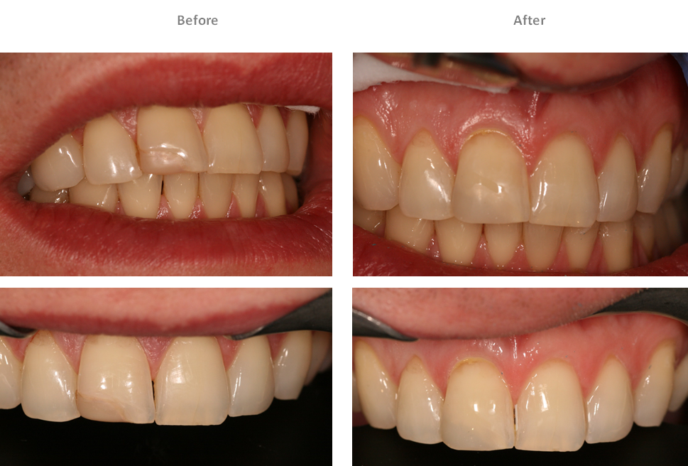 Aesthetic Dental Zone Composite Filling